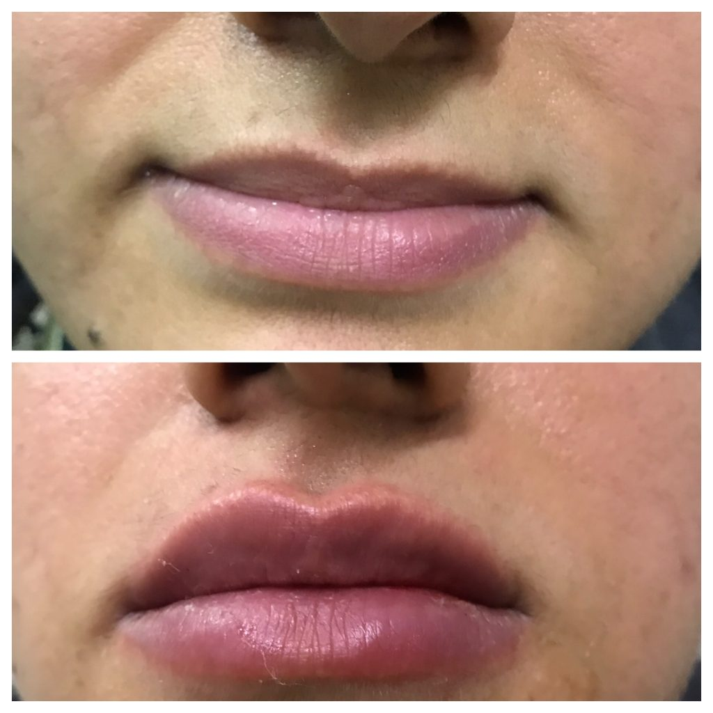 Lip augmentation cost in Lahore, pakistan