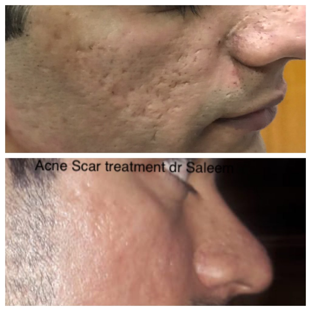 Acne scar treatment in Lahore